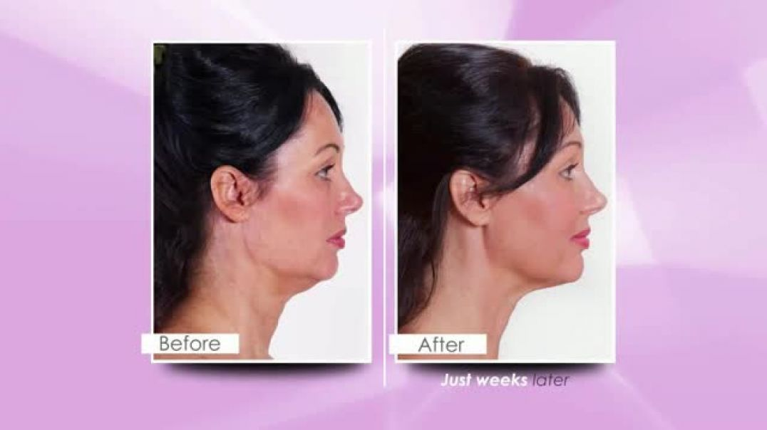 My FaceLift Younger TV Commercial