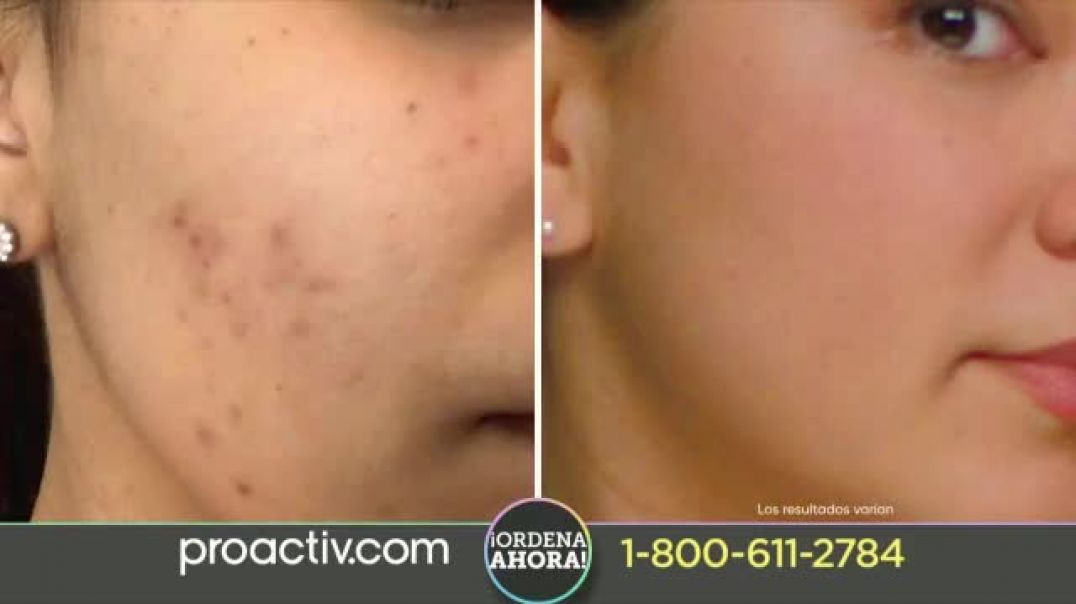 ProactivMD TV Commercial Ad New Triple Brush Focus (30s Sp  H2s).mp4