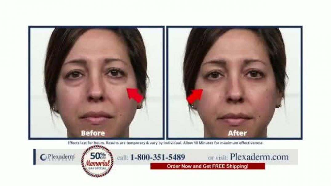 Plexaderm Skincare Memorial Day Special TV Commercial Ad 2020, Hottest Videos  50 Percent Off