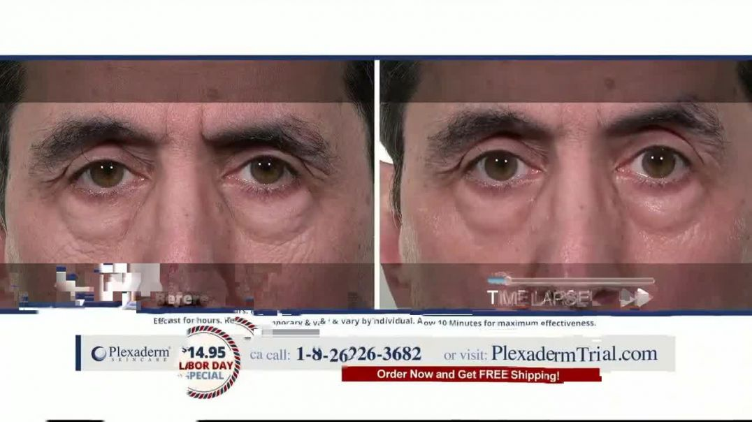 Plexaderm Skincare Labor Day Special TV Commercial Ad 2020, CEO of Plexaderm- $1495 Trial